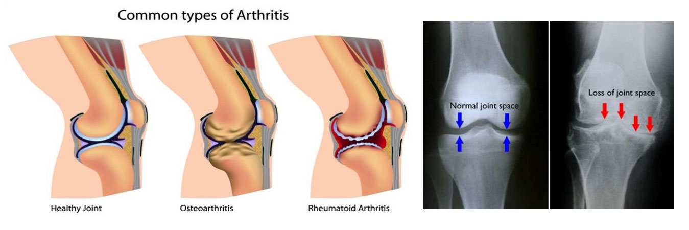Arthritis Doctor In Jaipur