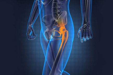 Hip Replacement Doctor In Jaipur